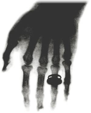 Lo que produce rayos X?